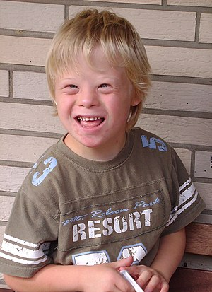 8-year-old boy with Down Syndrome