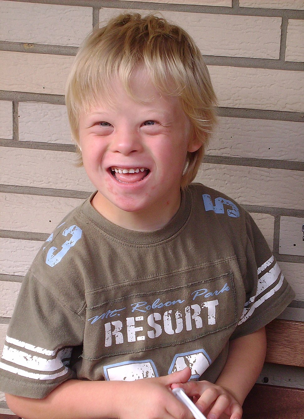 Boy with Down Syndrome