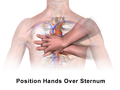 CPR Adult Chest Compression Heart.png