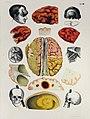 Chirurgischer Atlas der chirurgischen Krankheiten von Dr Victor Bruns 1853 (02) retusche.jpg
