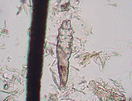 Demodex mite 1.JPG