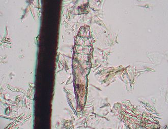 Demodex - D. canis