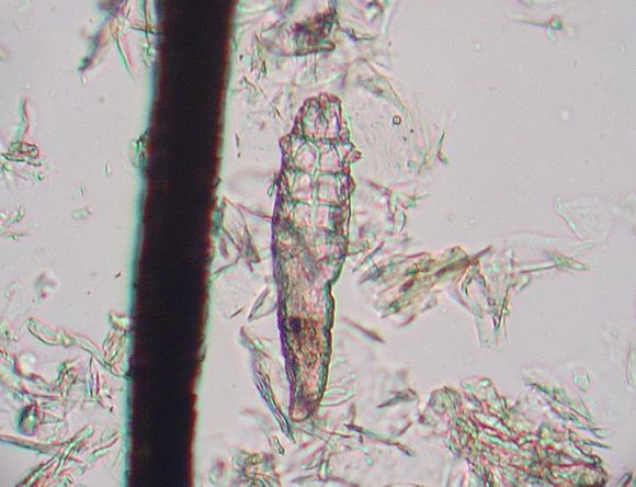 demodex canis zoonosis