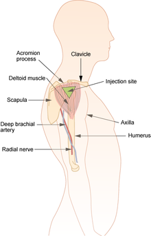 Intramuscular injection Wikipedia