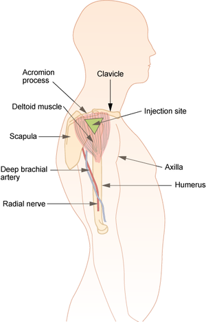 Intramuscular injection - Diagram showing the deltoid site for intramuscular injection