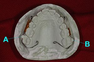Palatal lift prosthesis - Occlusal view of an interim palatal lift prosthesis master cast with orthodontic wire clasps bent to engage composite resin (A) affixed to tooth number 2 and an orthodontic bracket (B) affixed to tooth number 15
