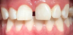 Attrition (dental) - Loss of tooth characteristics