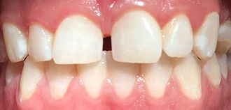 Attrition (dental) - Loss of tooth characteristics