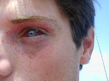 Eye and surrounding skin of young male showing petechial and subconjunctival haemmorhages