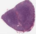 Nodular lymphocyte predominant Hodgkin lymphoma 2014 1.png