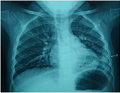 Pneumonia and pleural effusions on the lower left lung (2.5 y.o. child).png