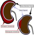 Renal hematoma diagram.png