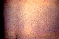 German Measles Natural Treatment