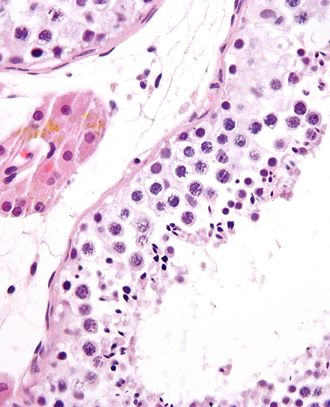 Spermatogenesis - Seminiferous tubule with maturing sperm. H&E stain.