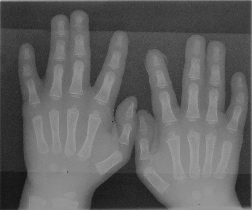 Syndactyly type1 hands
