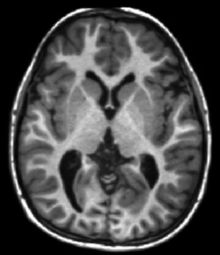 Two-dimensional scalar image depicting a section through a 3D brain at the level of the subcortical structures showing white, gray and CSF matter.