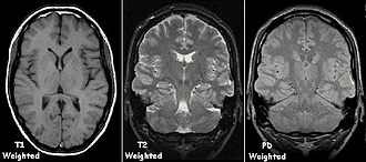 MRI sequence - Image: T1t 2PD