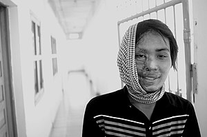 Acid attack victim, Cambodia, 2007