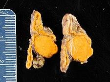 Kůra nadledviny pri primárním hyperaldosteronismu