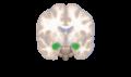 Amygdala frontal slice.png