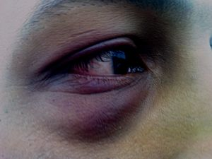 English: Close-up of a black eye after a few d...