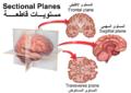 Blausen 0104 Brain x-secs SectionalPlanes-Arabic-YM.png