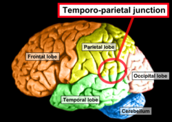 Damage to the thalamus