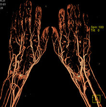 CT-Angiografie-Haende.jpg
