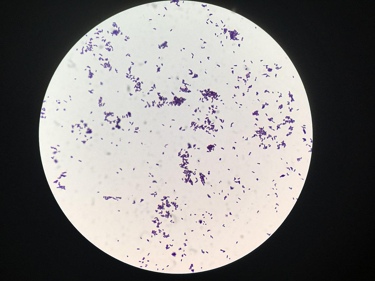 дифтероиды микробиология фото входа