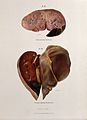 Diseased livers; hepatitis, 1897 Wellcome V0010282ER.jpg