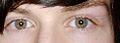 Heterochromiairidum.jpg