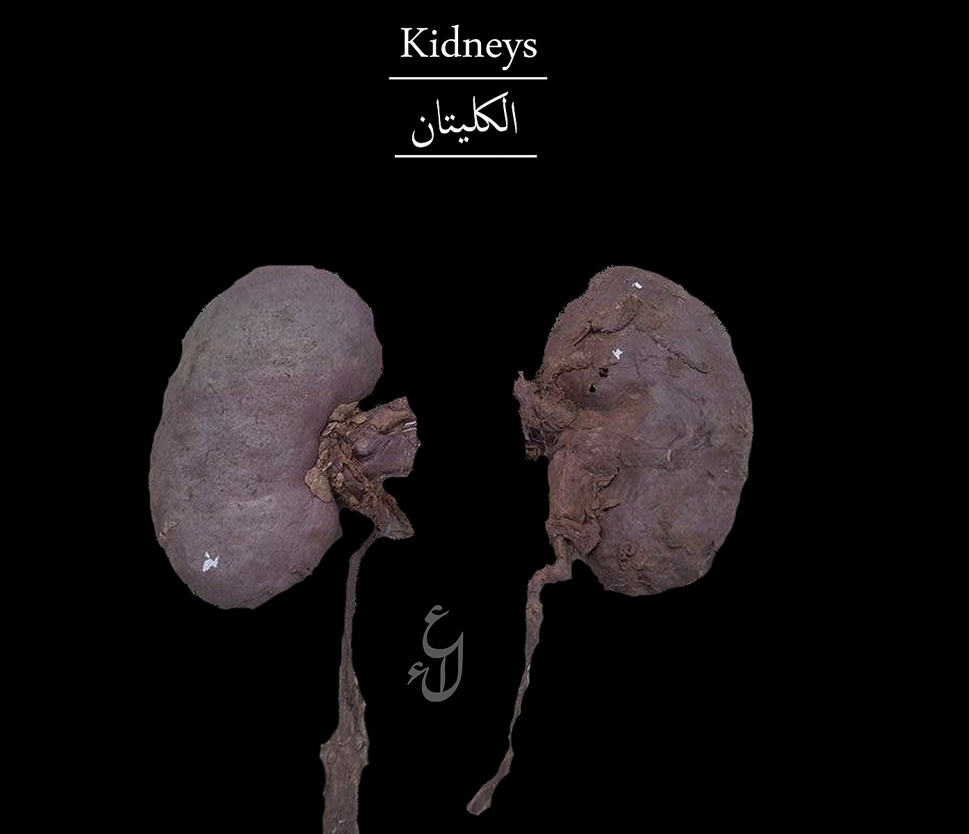 File:Human kidneys.jpg