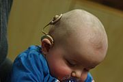 Infant with cochlear implant