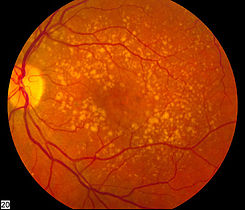 Intermediate age related macular degeneration.jpg