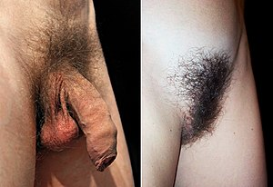 Pubic hair on a mature male (left), and a mature female (right)
