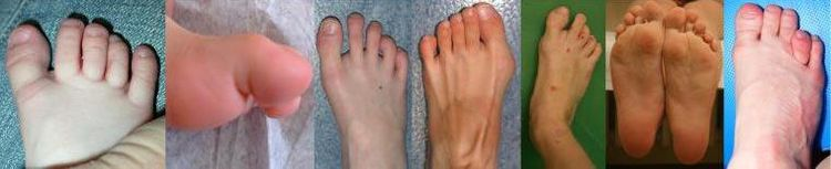 Pictures of the feet of NCBRS