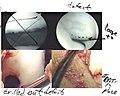 OATS-Arthroscopic Scan1.jpg