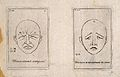 Outlines of faces expressing emotion (left) and sadness and Wellcome V0009388.jpg