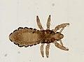 Pediculus humanus (YPM IZ 093556).jpeg
