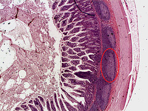 Ileum - Image: Peyer's patch (improved color)