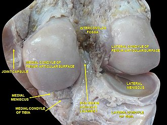 Intercondylar fossa of femur - Image: Slide 2cocc