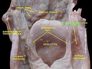 Posterior cricoarytenoid muscle - Image: Slide 6sss
