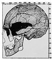The Halling Skull; side view with seal. Wellcome M0001122.jpg