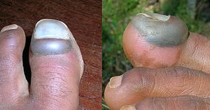 Injured toe nail - 3 days after the accident