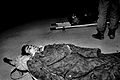 Victim of Khojaly massacre 2.jpg