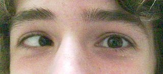 Esotropia is a strabismus in which the eye turns inward toward the nose