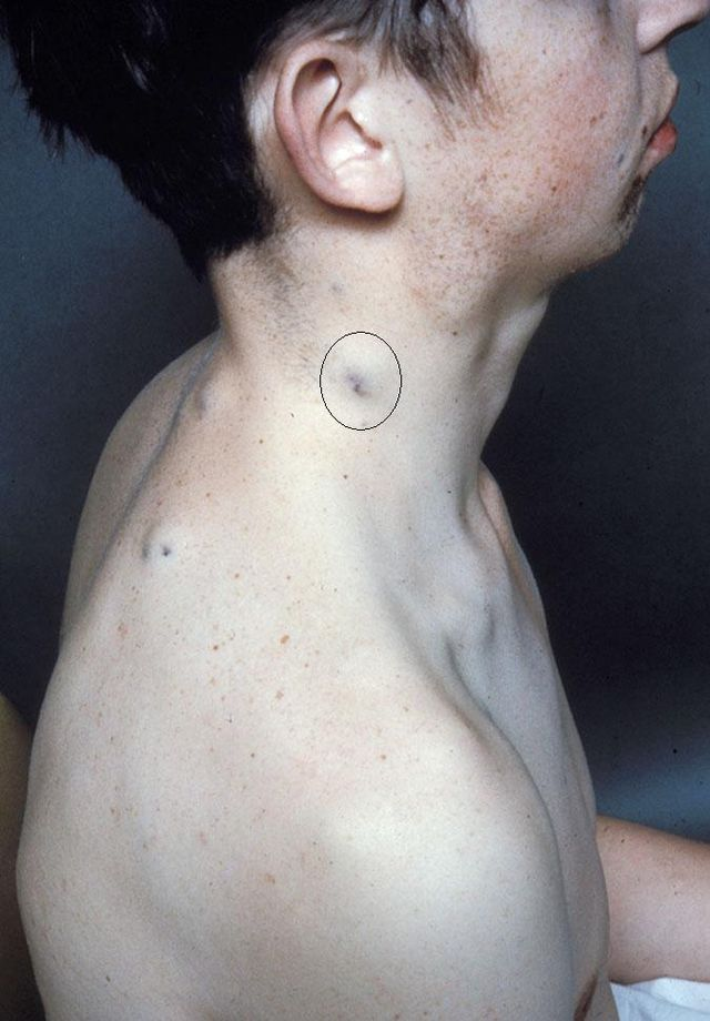 Blue rubber bleb nevus syndrome - Wikiwand