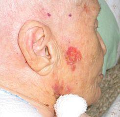 Sintomas cancer de piel nariz