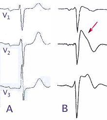 Normal electrocardiograms compared to electrocardiograms of people with Brugada Syndrome