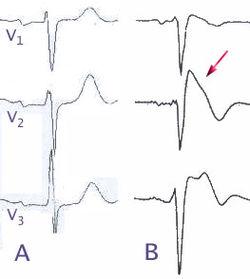 Brugada EKG Schema.jpg